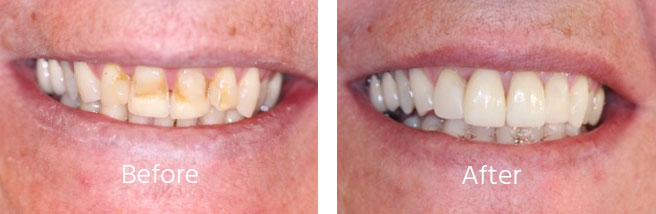 Cosmetic Dentistry Andover Hampshire