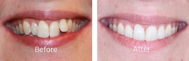 Dental Aligners Hampshire Andover