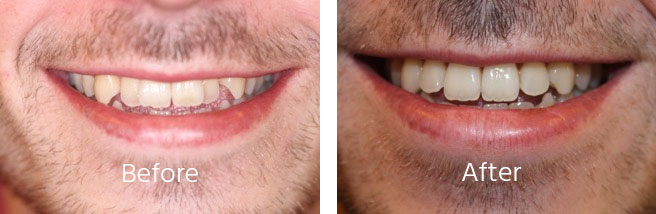 Cosmetic Dental Aligners Andover Hampshire