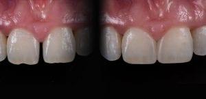 dental bonding andover