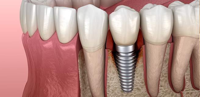 Dental Implants Hampshire