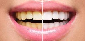 Teeth Whitening Andover