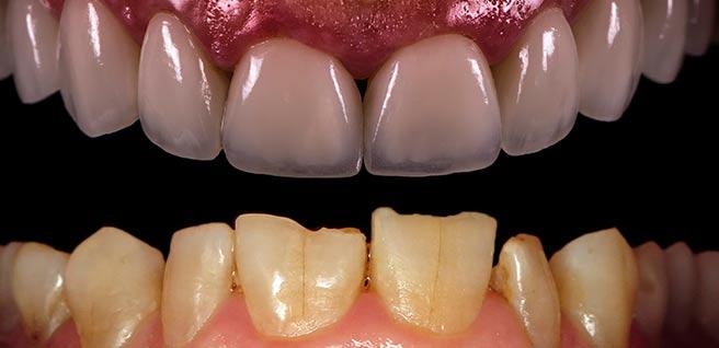 Dental Veneers Bonding Andover