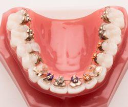 Behind Teeth Braces Andover
